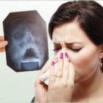 Гайморит: симптомы и лечение у лора