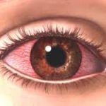 Синдром красного глаза: болезнь современности